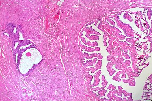 All'origine dell'endometriosi