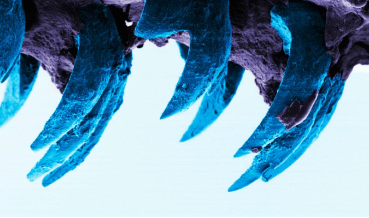 dente patella