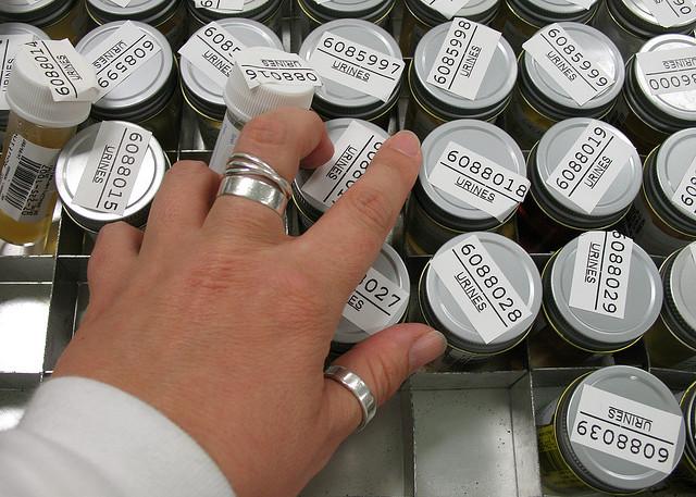 Un test delle urine per il cancro al pancreas? - Galileo