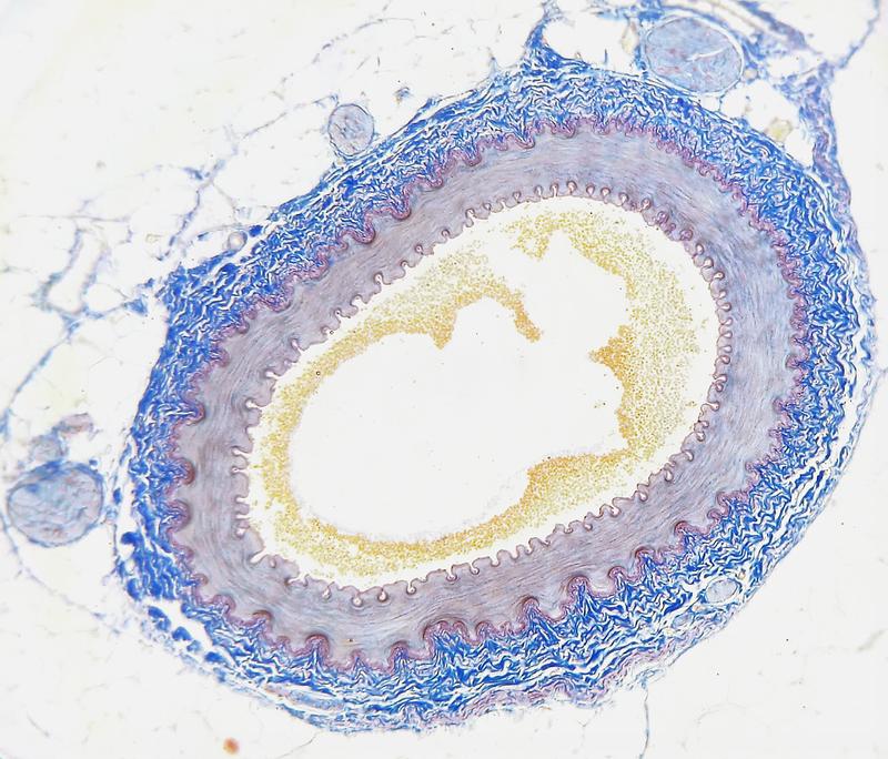 Ipercolesterolemia familiare, una malattia ignorata - Galileo