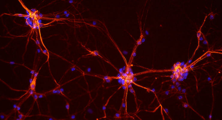 Le cellule che ricordano il dolore - Galileo