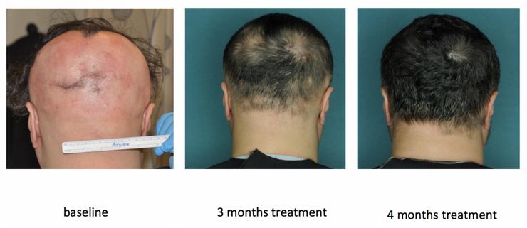 alopecia ricrescita