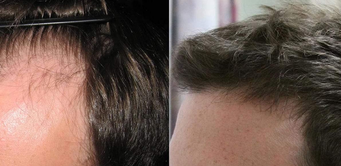 Stempiatura e Alopecia  che posizione ha il Trapianto di Capelli nel quadro  di lotta alla calvizie  b7dd32d3db37