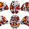 Schizofrenia, trovata l'area del cervello all'origine della malattia
