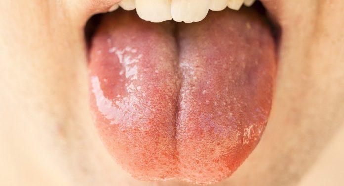 lingua da covid